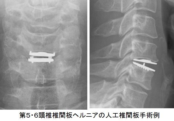 手術 椎間板 ヘルニア